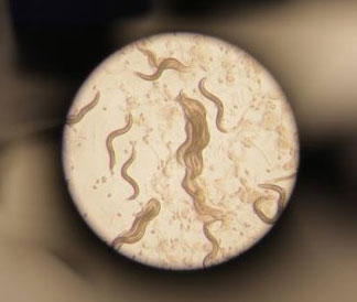 Image of a population of Caenorhabditis elegans taken through a stereomicroscope.