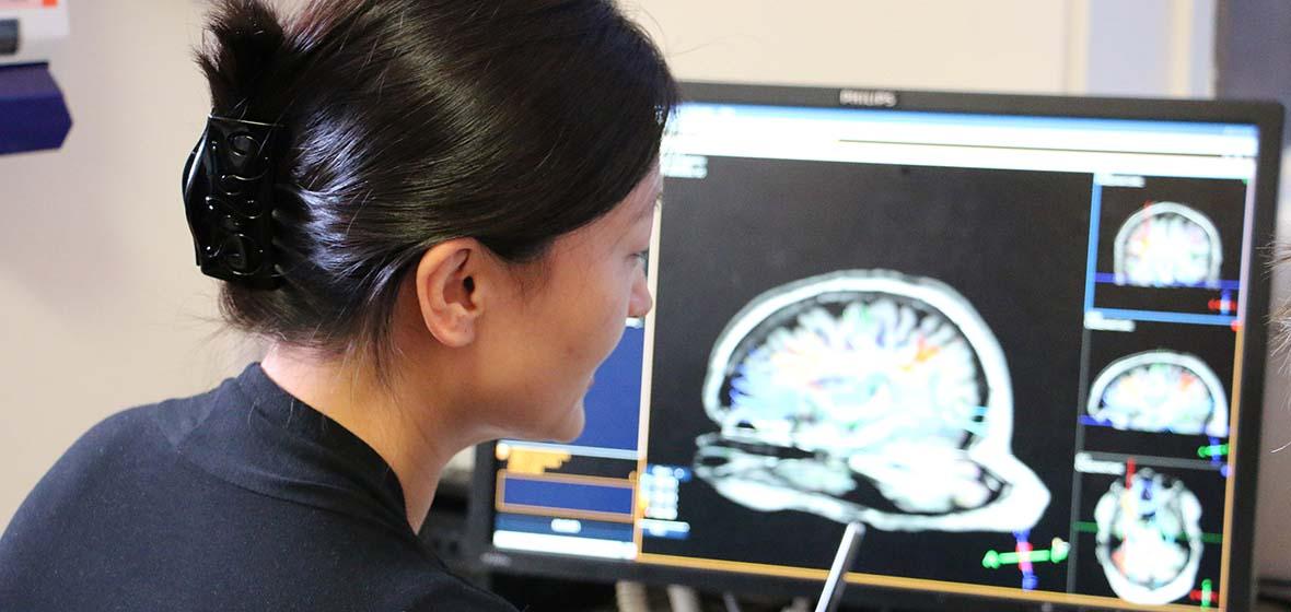 Fang Jiang studies fMRI technology images