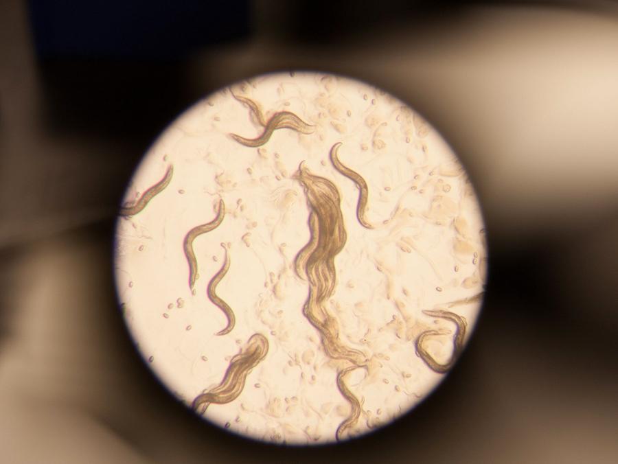 tiny worms under microscope